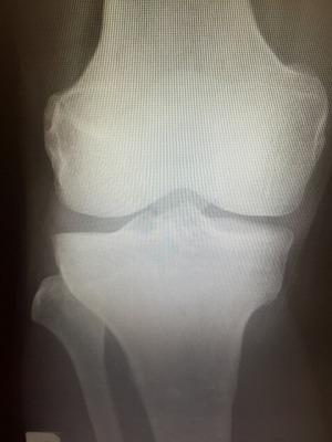 膝レントゲン